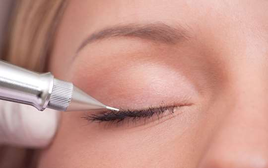 Permanent-Makeup am Augenlid